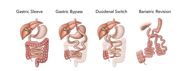 Image of types of Bariatric Surgery using internal illustrations